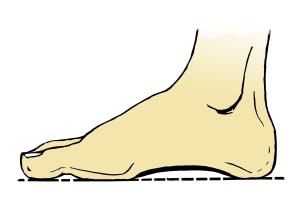 Imagen de un pie